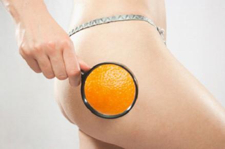 橙皮組織1