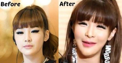 Park-Bom-chin-implant-before-after