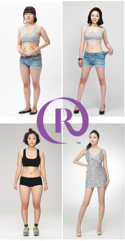 before_after_liposuction (1)_副本
