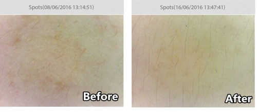 michelle-cheong-spot-before-after_pc