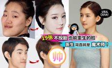 【19个证明『不投胎也能变脸重生』】韩国整形成功的例子!真的帮助不少人重获自信~